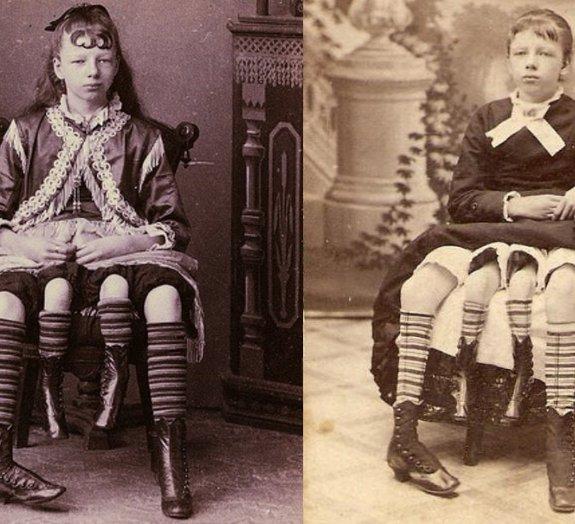 Josephine Myrtle Corbin: conheça a história da mulher com quatro pernas