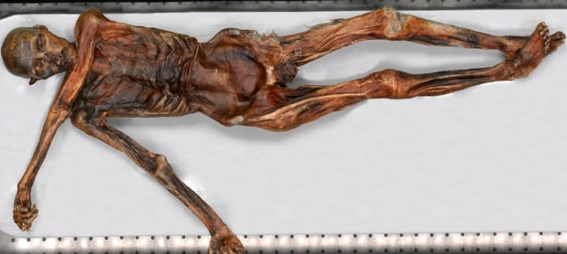 DNA de bactéria é encontrado em osso de múmia de mais de 5 mil anos