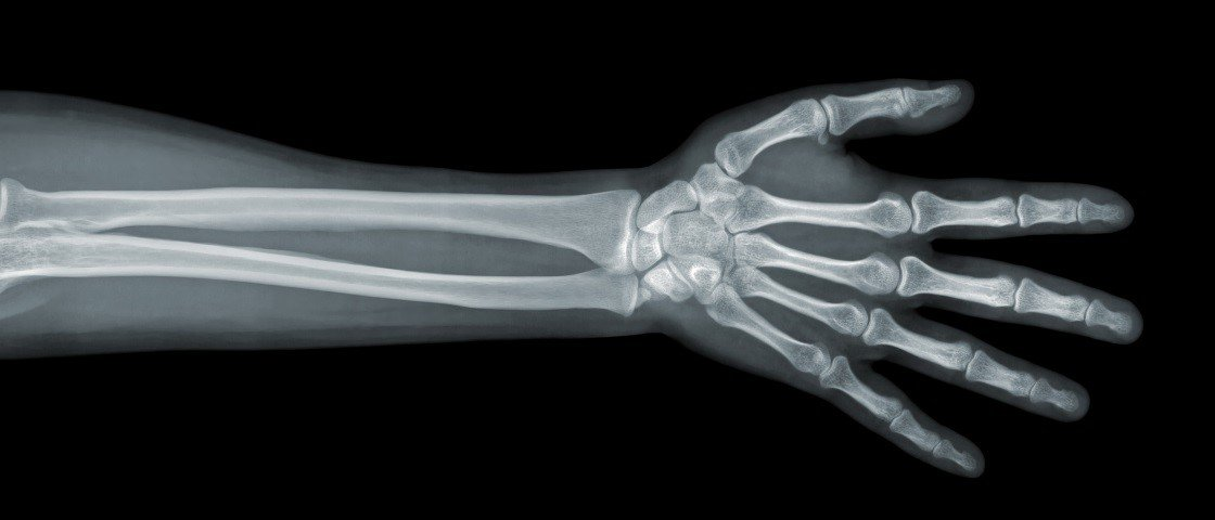 Veja GIFs surpreendentes de raios x de articulações em movimento