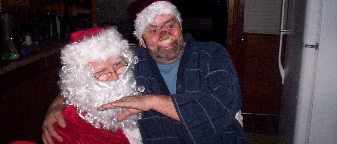 Homem vítima de câncer passa 10 anos com um buraco monstruoso no rosto