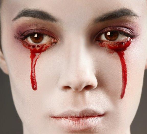 Você sabia que existem pessoas que choram lágrimas de sangue?