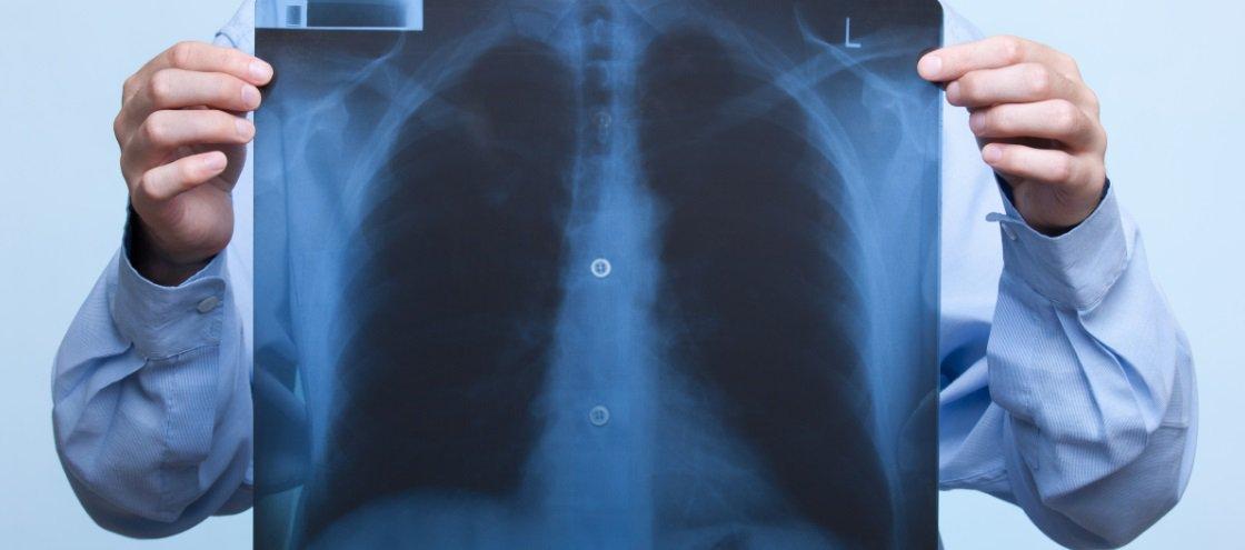 15 dos raios X mais insanos que você vai ver na vida