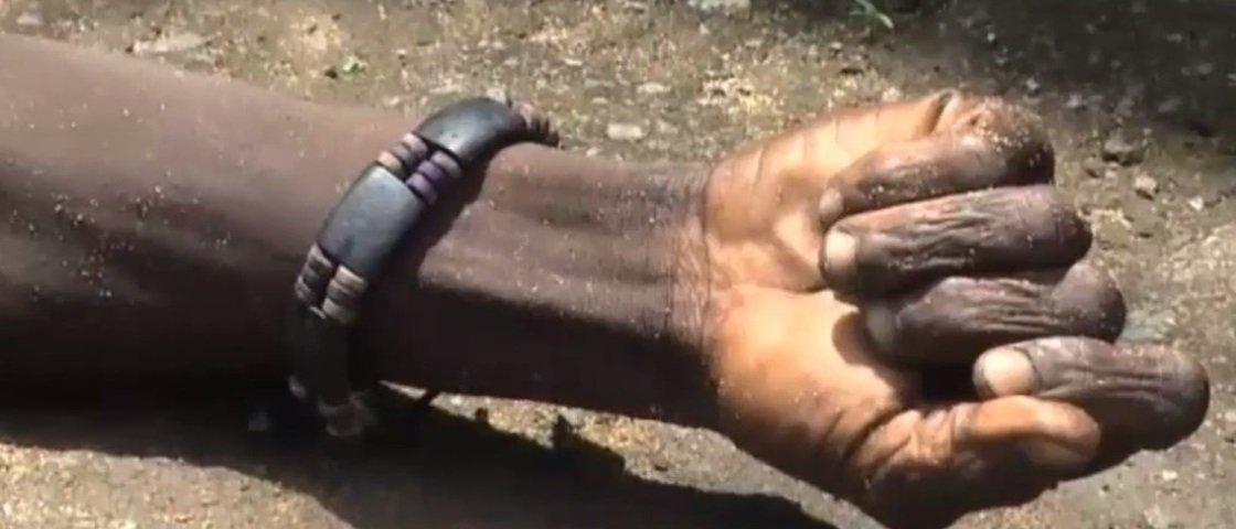 Homem dado como morto por ebola mexe seu braço enquanto é resgatado [vídeo]