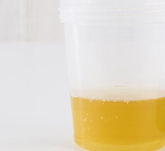 Urinoterapia: será que beber o próprio xixi realmente faz bem para a saúde?