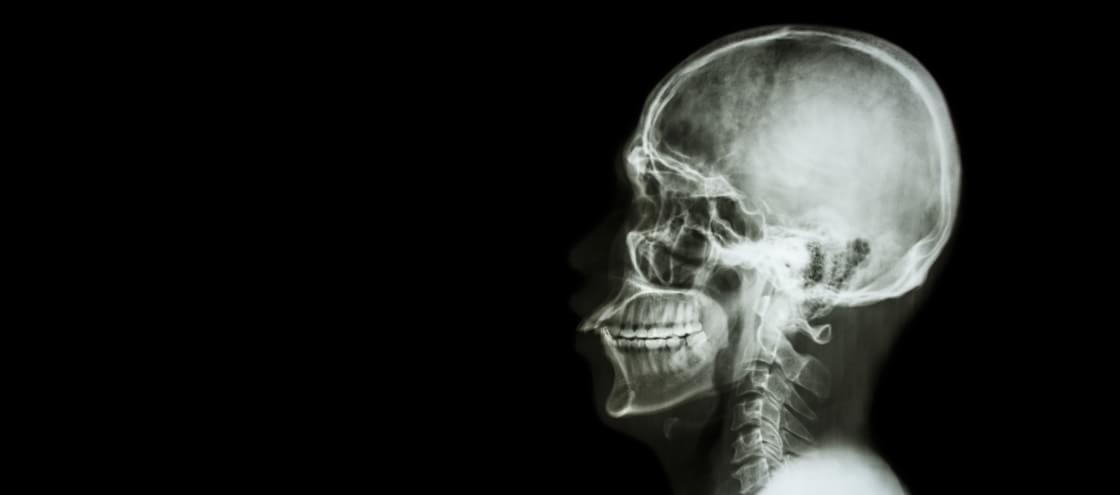 Confira 7 mitos e verdades relacionados aos exames de raios X
