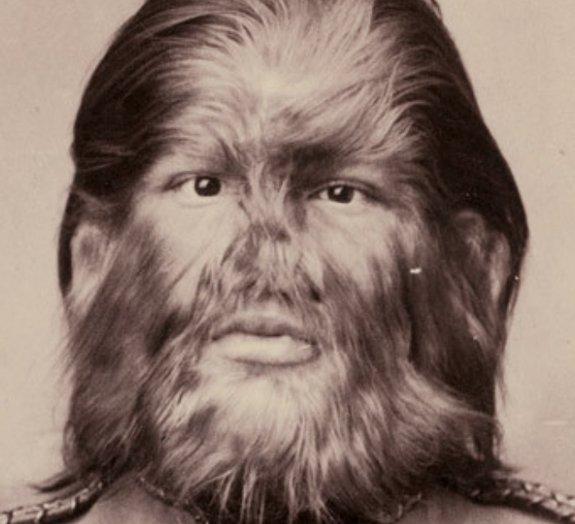 15 fotos históricas de pessoas com deformidades pra lá de estranhas