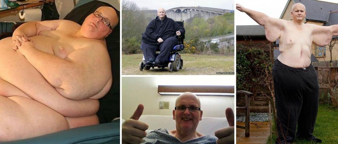 Homem mais gordo do mundo emagrece e compartilha fotos do processo