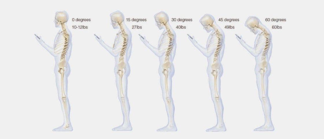 Cuidado! Postura errada no uso do smartphone pode causar dores de cabeça