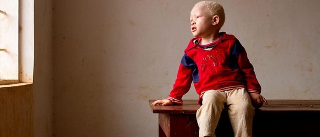 Jornalista retrata albinos que vivem isolados por medo de feitiçaria