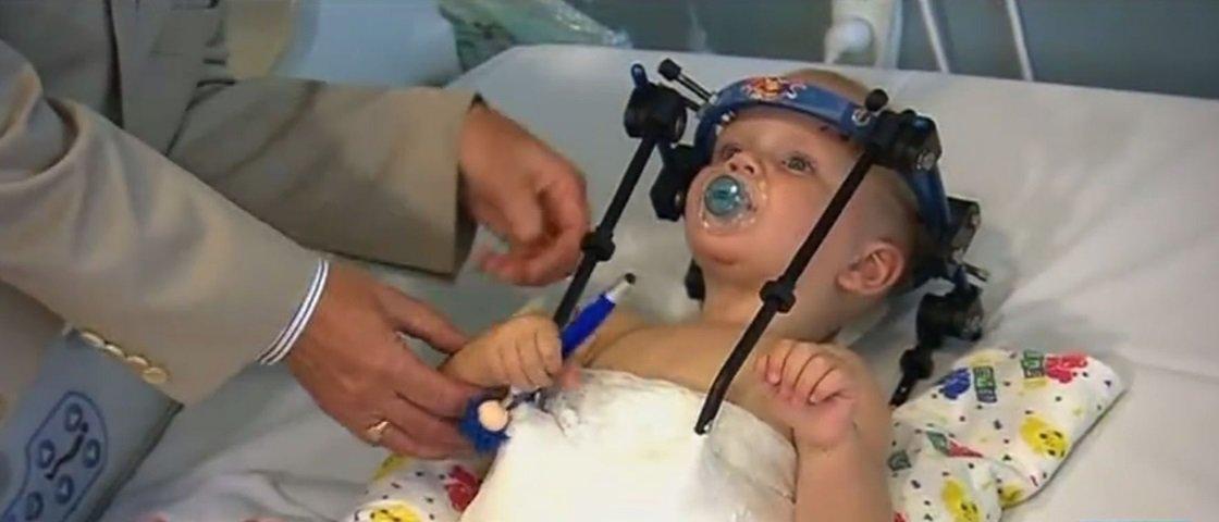 Milagre: garotinho sofre 'decapitação interna' em acidente e sobrevive