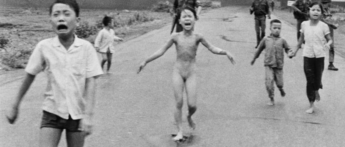 Mulher que se tornou símbolo da Guerra do Vietnã fará tratamento de pele