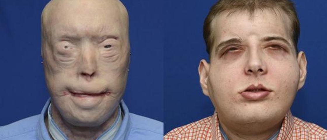 Maior transplante facial da história muda vida de bombeiro