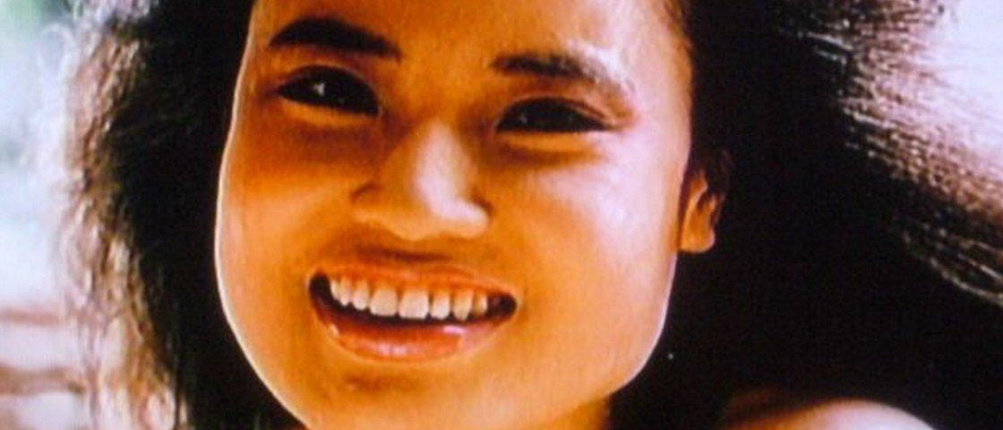 Conheça a triste história da mulher que injetou óleo de cozinha na cara