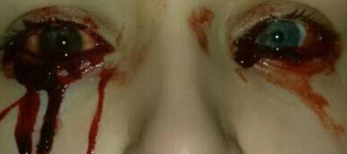 Jovem que sangra pelos olhos faz tratamento que pode deixá-la infértil
