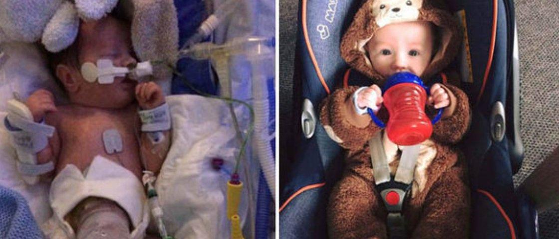 Milagre da medicina: bebê sobrevive mesmo nascendo com intestino para fora