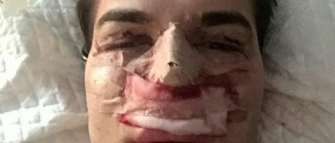 Bactéria comedora de carne devora nariz de Ken humano brasileiro