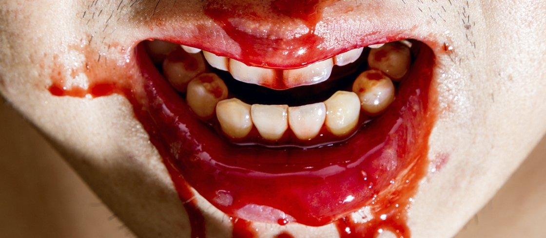 3 casos bizarros envolvendo canibalismo