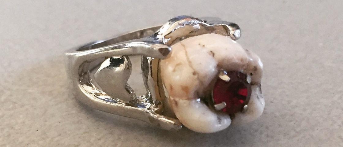 Que tal pedir sua namorada em casamento com seu dente em uma aliança?