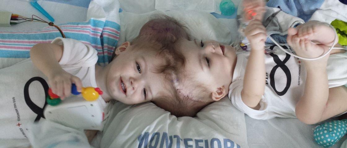 Cirurgia raríssima separa gêmeos siameses unidos pelo topo do crânio