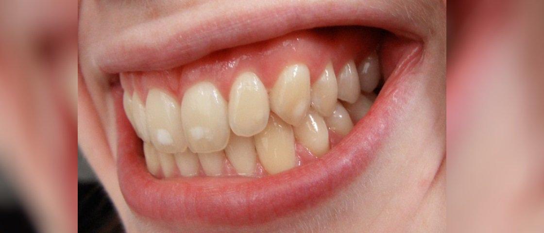 O que são aquelas manchinhas brancas que algumas pessoas têm nos dentes?