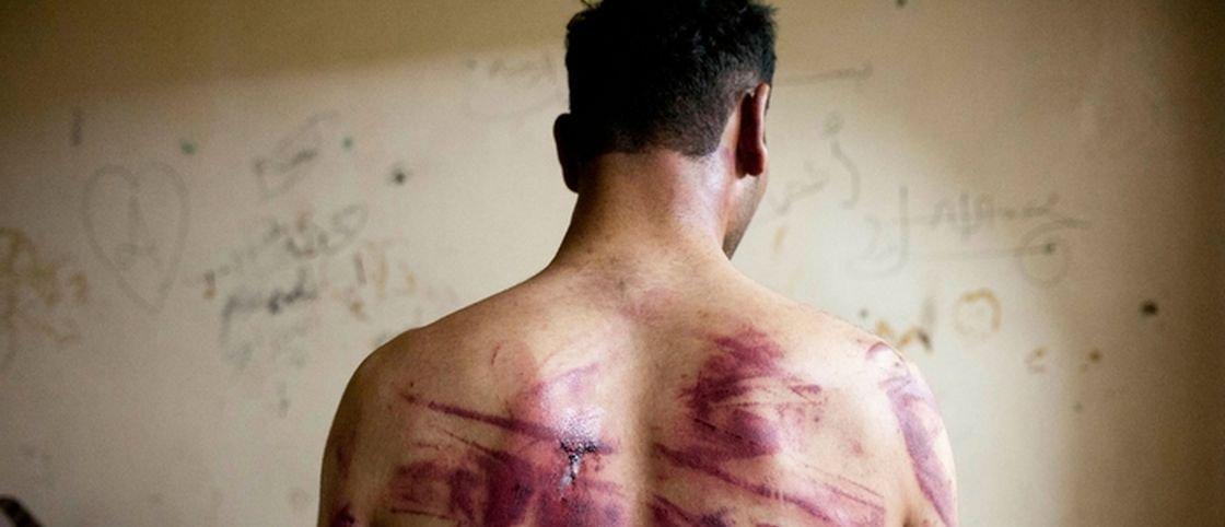 Será que a tortura pode realmente funcionar?