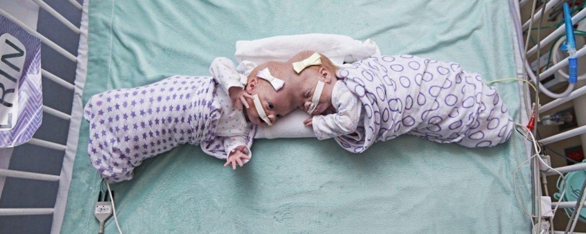 Gêmeas unidas pela cabeça passam por complicada cirurgia de separação