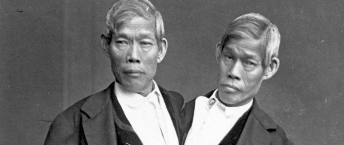 4 histórias trágicas envolvendo a morte de gêmeos siameses