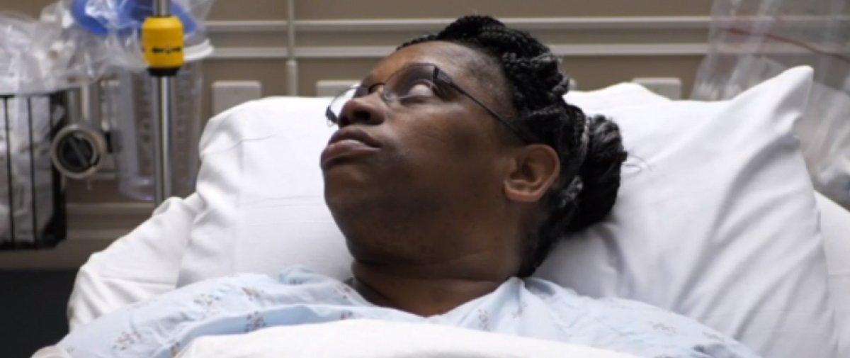 Sinistro: mulher descobre que nariz escorrendo há anos não era alergia