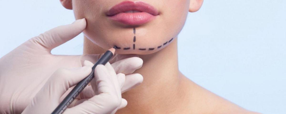 7 casos chocantes de famosas que aderiram a cirurgias plásticas extremas