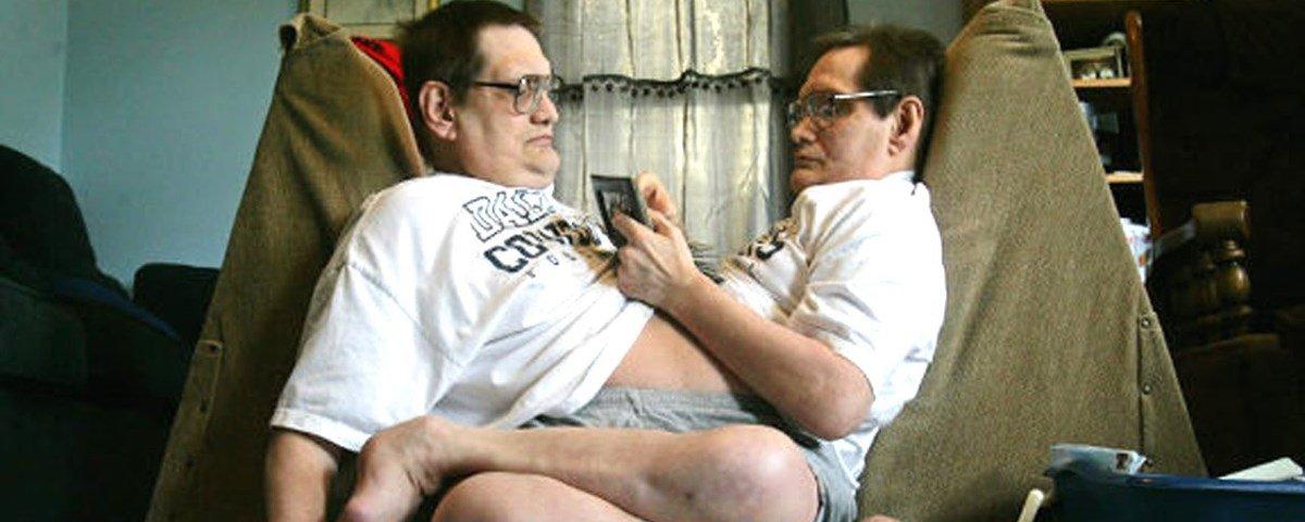 Conheça a história dos gêmeos siameses com a vida mais longa da História