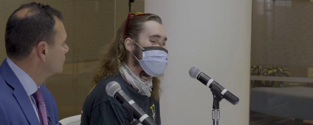 Após transplante de rosto, homem mostra recuperação impressionante!