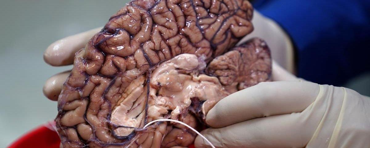 """Descobriram uma área """"oculta"""" dentro do cérebro humano"""
