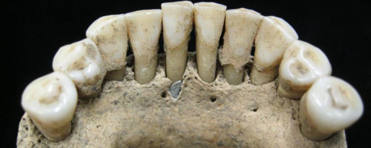 Mancha em dente revela algo inusitado sobre freiras da Idade Média