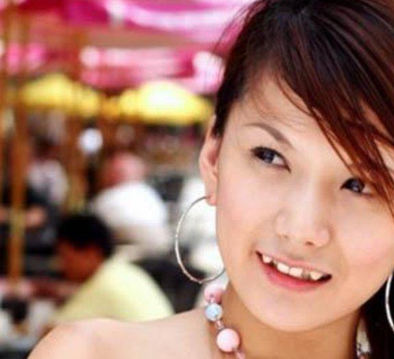 Dentistas pasmem: nova moda no Japão é ter dentes tortos