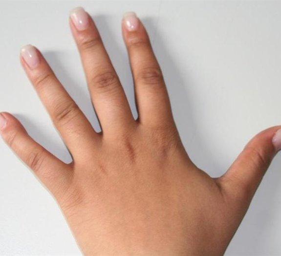 Mito ou verdade: dedos não possuem músculos?