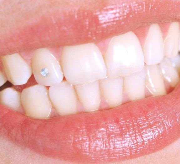 Nanopartículas de diamante poderão ser usadas em tratamentos odontológicos