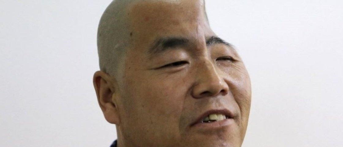 Chinês com a cabeça terrivelmente amassada receberá prótese 3D de titânio