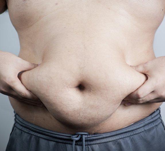 Ver meio quilo de gordura humana talvez mude seus hábitos alimentares
