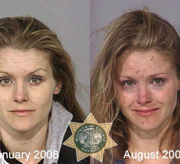 Fotos de usuários antes e depois mostram o efeito devastador das drogas