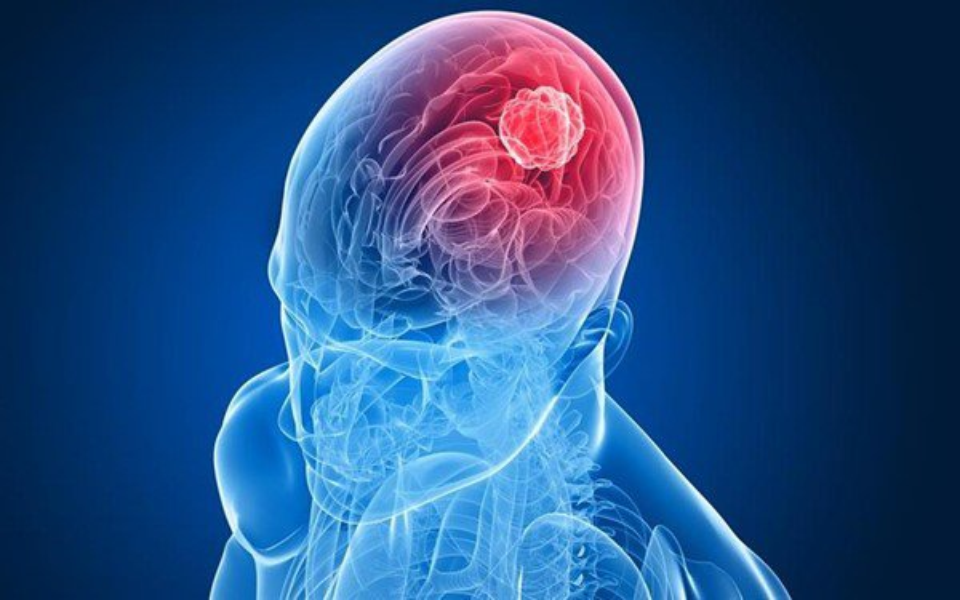 Novo componente é capaz de 'explodir' células de câncer de cérebro - Mega Curioso