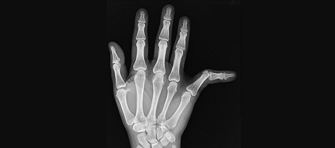 Sabia que existe um site onde os médicos postam radiologias bizarras?