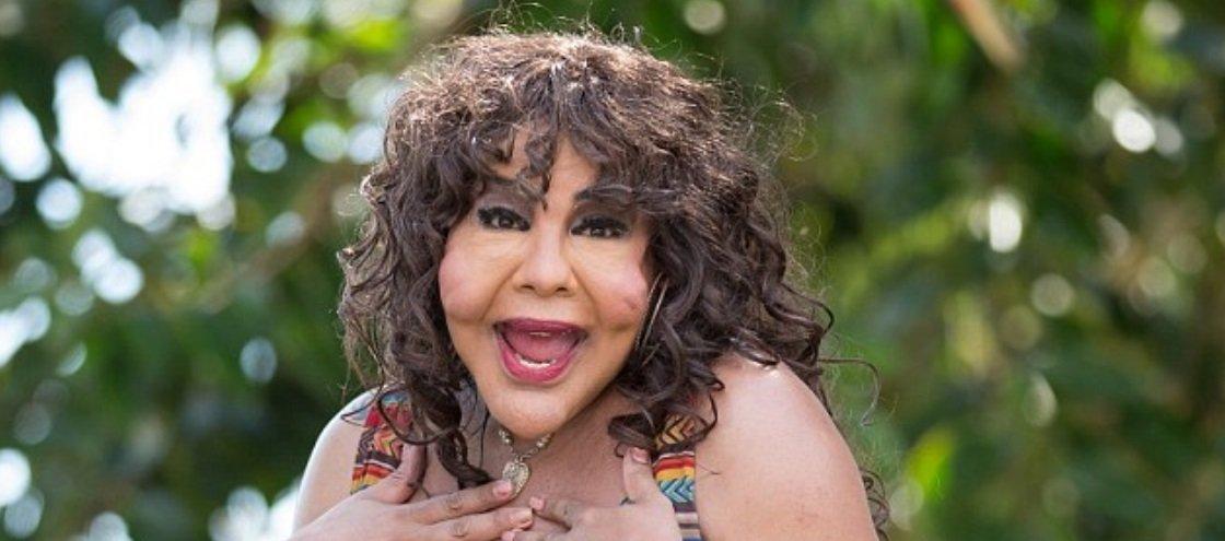Mulher transgênera desfigurada por injeção de cimento ganha novo rosto