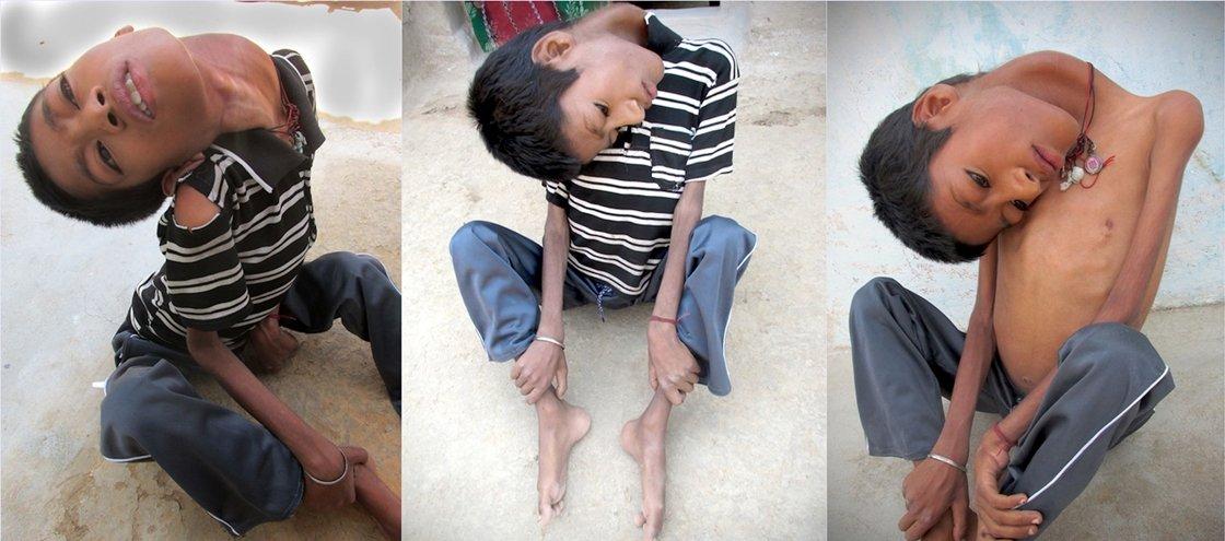 Conheça o garoto com uma rara doença que faz sua cabeça ficar pendurada