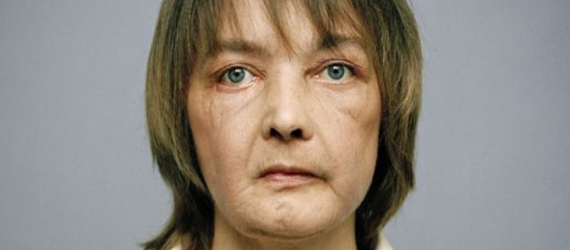 Morre a primeira mulher a receber um transplante parcial de face
