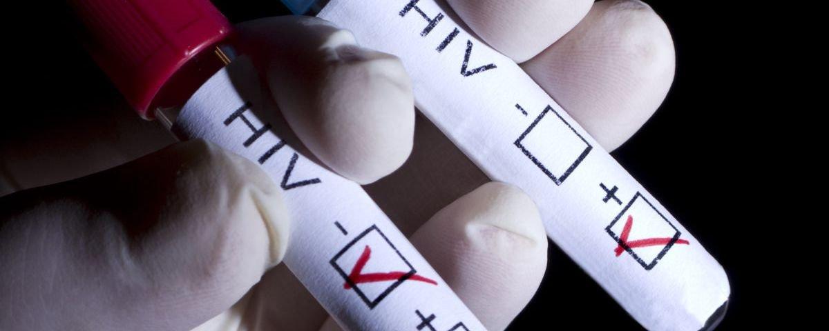 HIV: soropositivos com carga viral indetectável não transmitem o vírus