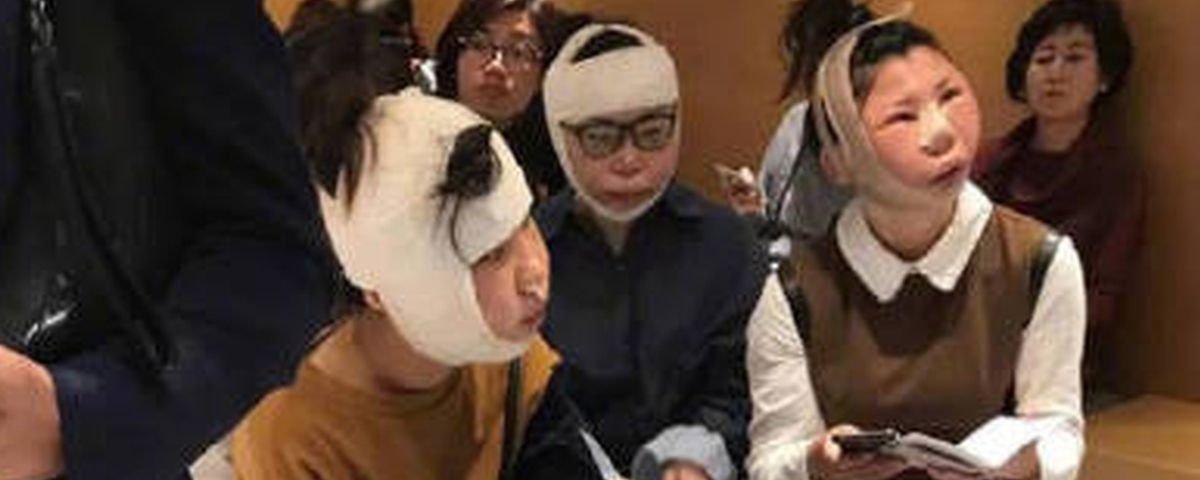 Turistas são barradas em aeroporto após cirurgias plásticas extremas