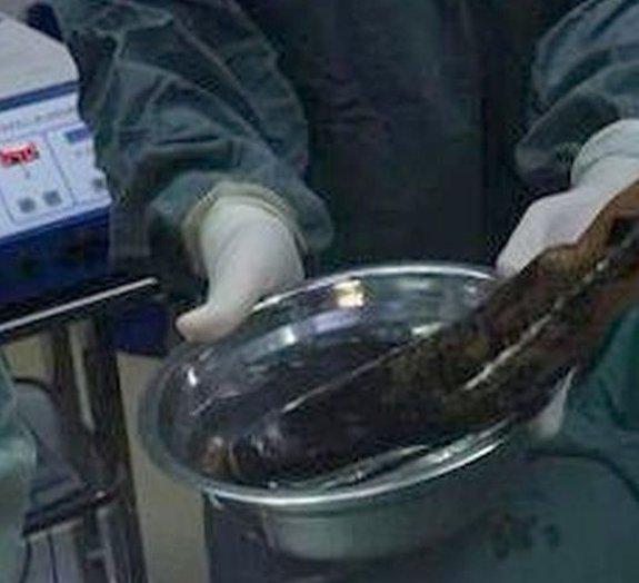Prisão de ventre leva homem a machucar o PULMÃO ao enfiar berinjela no ânus