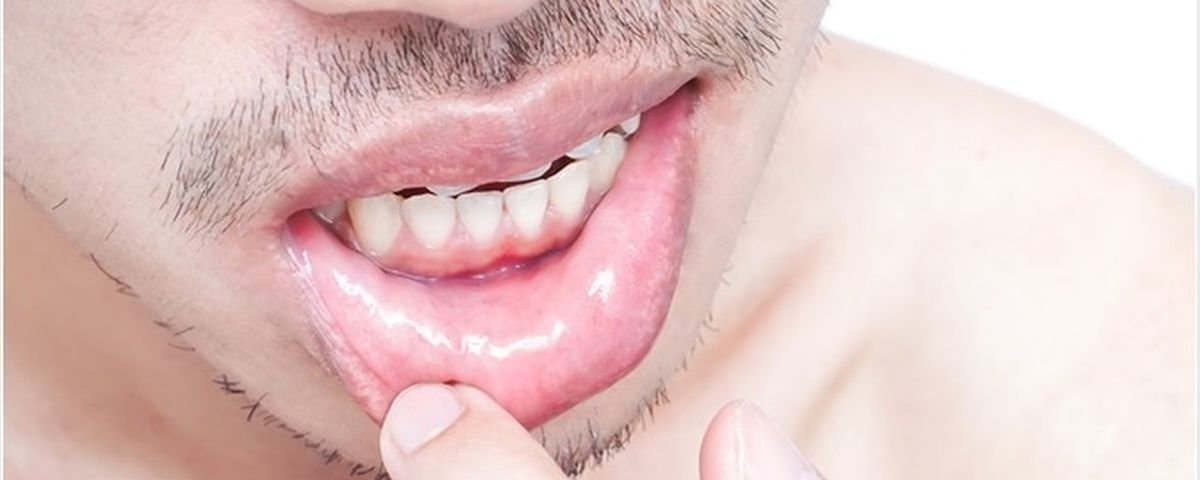 Herpes labial estres causas