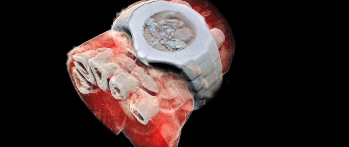 Inventaram uma engenhoca que captura raios X 3D coloridos do corpo humano