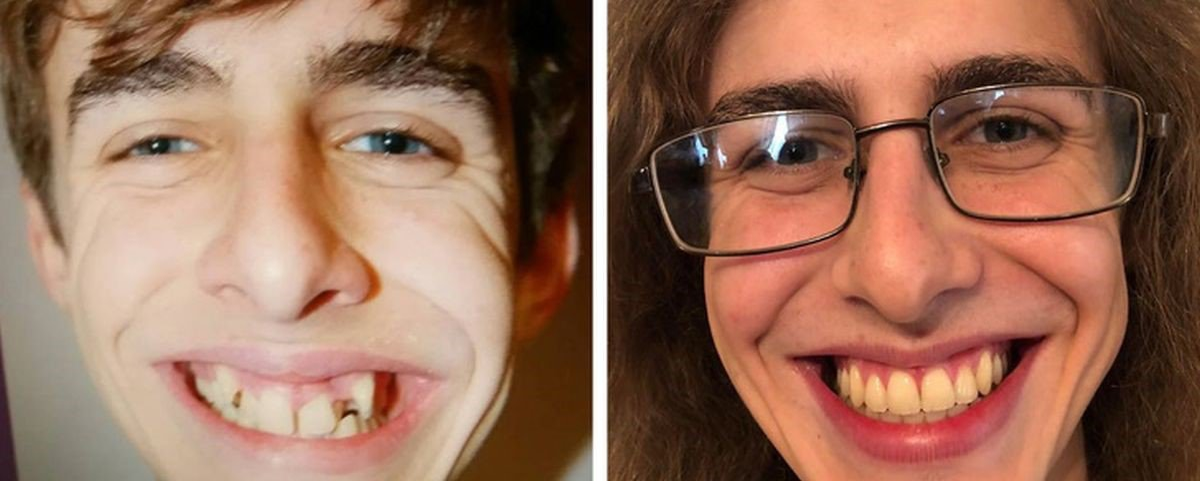 Antes e depois: 10 provas de que o tempo muda pessoas, paisagens e objetos